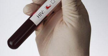 سعر تحليل الايدز في مصر