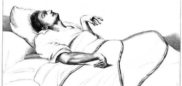 أنواع الصرع وأعراضه