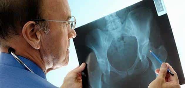 اخطر انواع سرطان العظام وعلاجها
