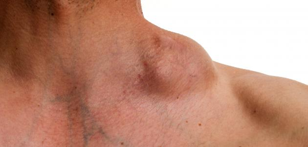 انتفاخ الغدد اللمفاوية في الرقبة بدون الم وعلاجها
