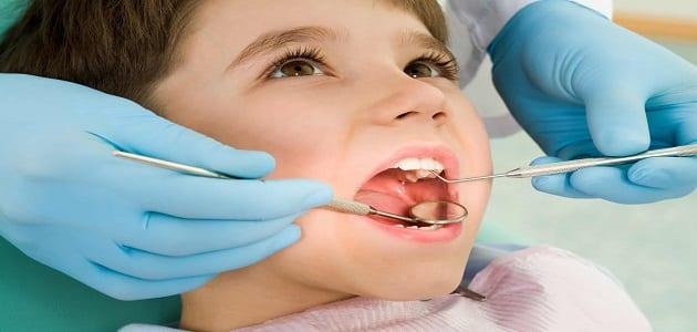 انواع بنج الاسنان للاطفال