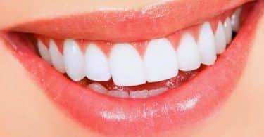 تجميل الأسنان في مصر