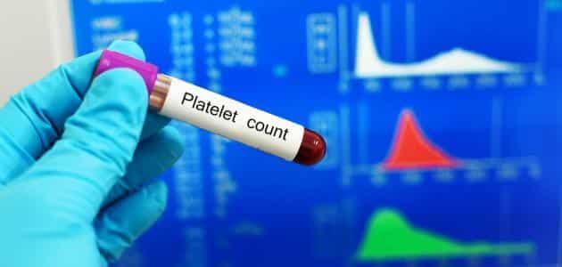 تحليل الصفائح الدموية الطبيعي