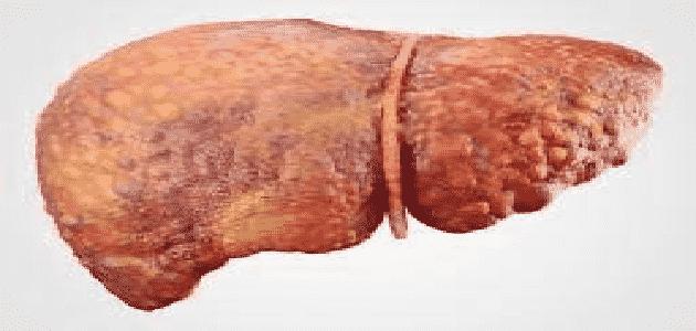 كم يعيش مريض سرطان الكبد بدون علاج نهائي