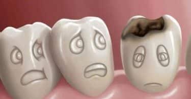 تفسير حلم تسوس الأسنان للعازب