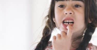تفسير حلم سقوط الأسنان وظهور غيرها