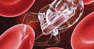 سرطان الدم وعلاجه