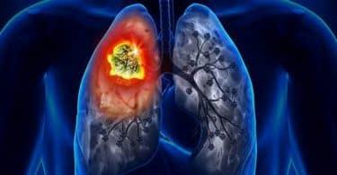 سرطان الرئة اسبابه واعراضه وعلاجه