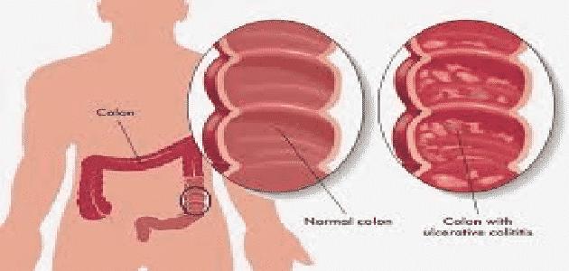 مراحل سرطان القولون الأخيرة