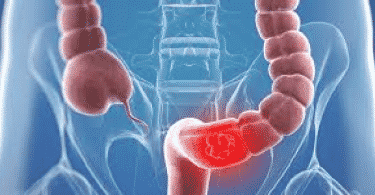 الفرق بين اعراض سرطان القولون والقولون العصبي وعلاجه