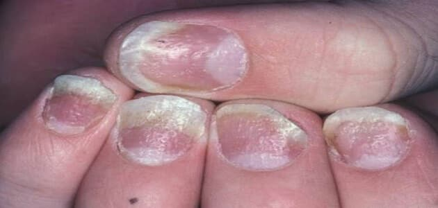 صدفية الأظافر وعلاجها بالأعشاب