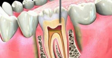 عصب الاسنان الملتهب