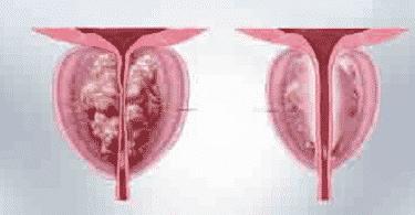 علاجات تضخم البروستاتا الحميد