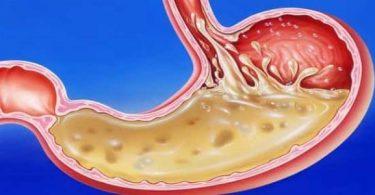 علاج أصوات البطن والغازات بالأعشاب