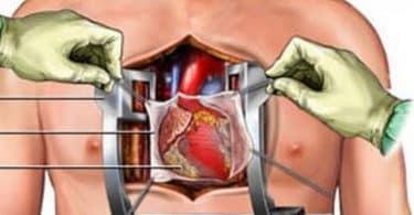 عمليات القلب المفتوح لكبار السن