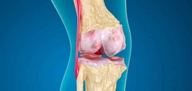 قطع غضروف الركبة الداخلي