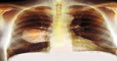 ماء الرئة سرطان ونسبة الشفاء