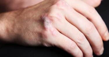 ما هو مرض الصدفية المستعصية