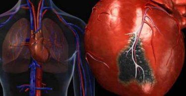 ما هي انزيمات القلب المرتفعه