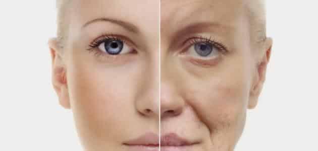 مرض الشيخوخه المبكره وطرق علاجه