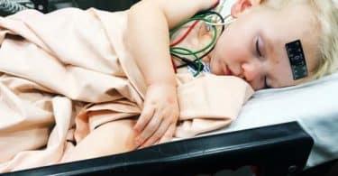 معدل تكرار نوبات الصرع عند الأطفال