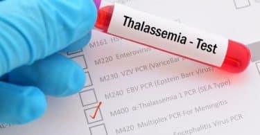 مرض الثلاسيميا والزواج