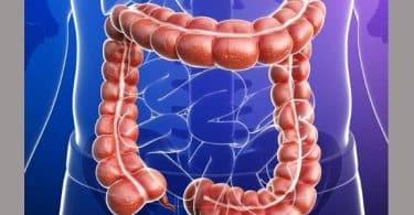 الأمعاء الغليظة وأمراضها