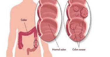 سرطان القولون ومراحله