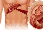 كيف يموت مريض سرطان الكبد؟