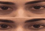 الهالات السوداء والإنتفاخ تحت العين