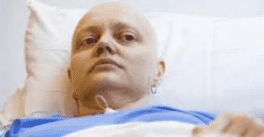 اعراض العلاج الكيماوي الابيض