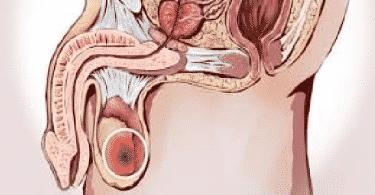 أعراض سرطان الخصية الحميد