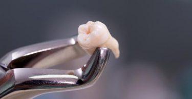 تفسير حلم سقوط الأسنان لابن سيرين