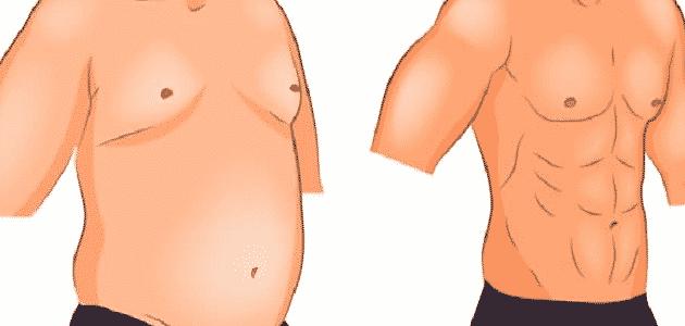 عمليات شفط الدهون ونحت القوام