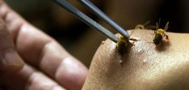 ما هو سم النحل وما فوائده