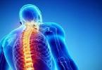 سرطان العمود الفقري وعلاجه