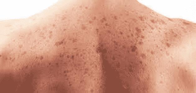 علاج سرطان الجلد بالعسل