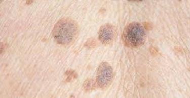 هل سرطان الجلد معدي من شخص لاخر