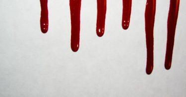 تفسير حلم بقع دم على الملابس للعزباء