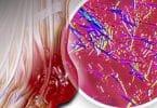 الاجسام المضادة في الدم