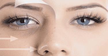العيون الغائرة وعلاجها
