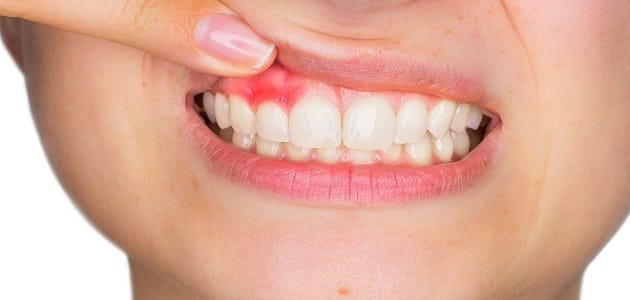 علاج خراج الأسنان بالمره