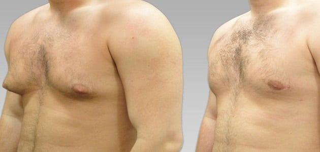 ما أسباب ترهل الثدي عند الرجال وكيفية علاجه ؟