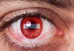 ما هو تفسير جرح العين في المنام ؟