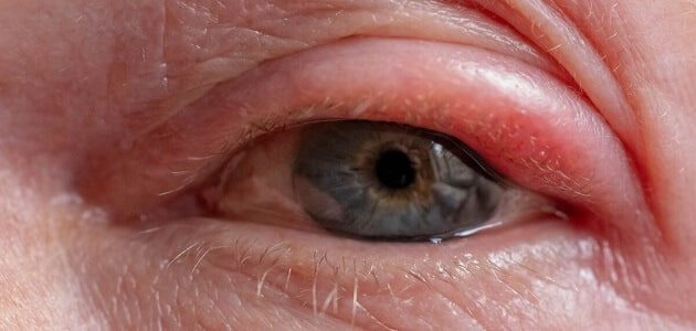 ما هي اسباب انتفاخ العين وعلاجها ؟