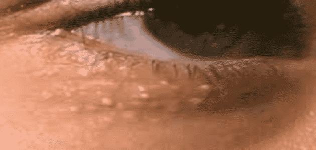 كيفية التخلص من حبوب تحت العين بنفس لون الجلد