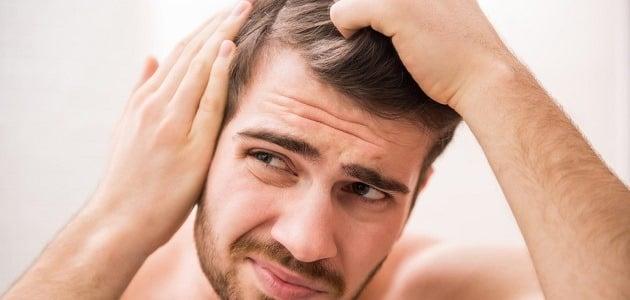 ما سبب ألم أعلى الرأس وليس صداع وعلاجه؟
