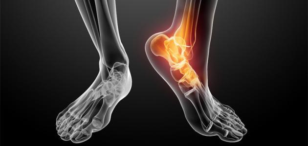 9 أعشاب لتخفيف ألم المفاصل والعظام