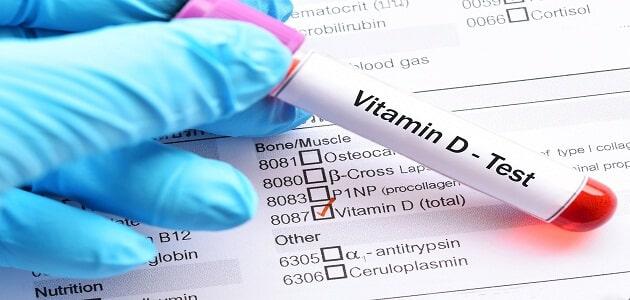 كم سعر تحليل الفيتامينات