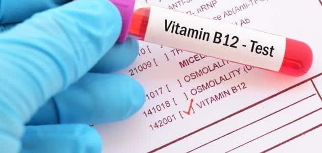 تحليل فيتامين ب 12 يحتاج صيام مقال